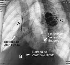CARDIODESFIBRILADOR MULTISSÍTIO TRC-D